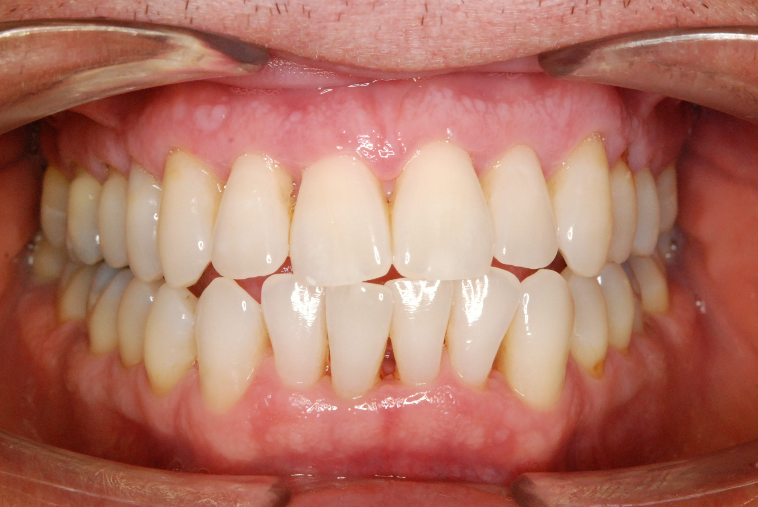 1 Dentální hygiena After 3 (2)