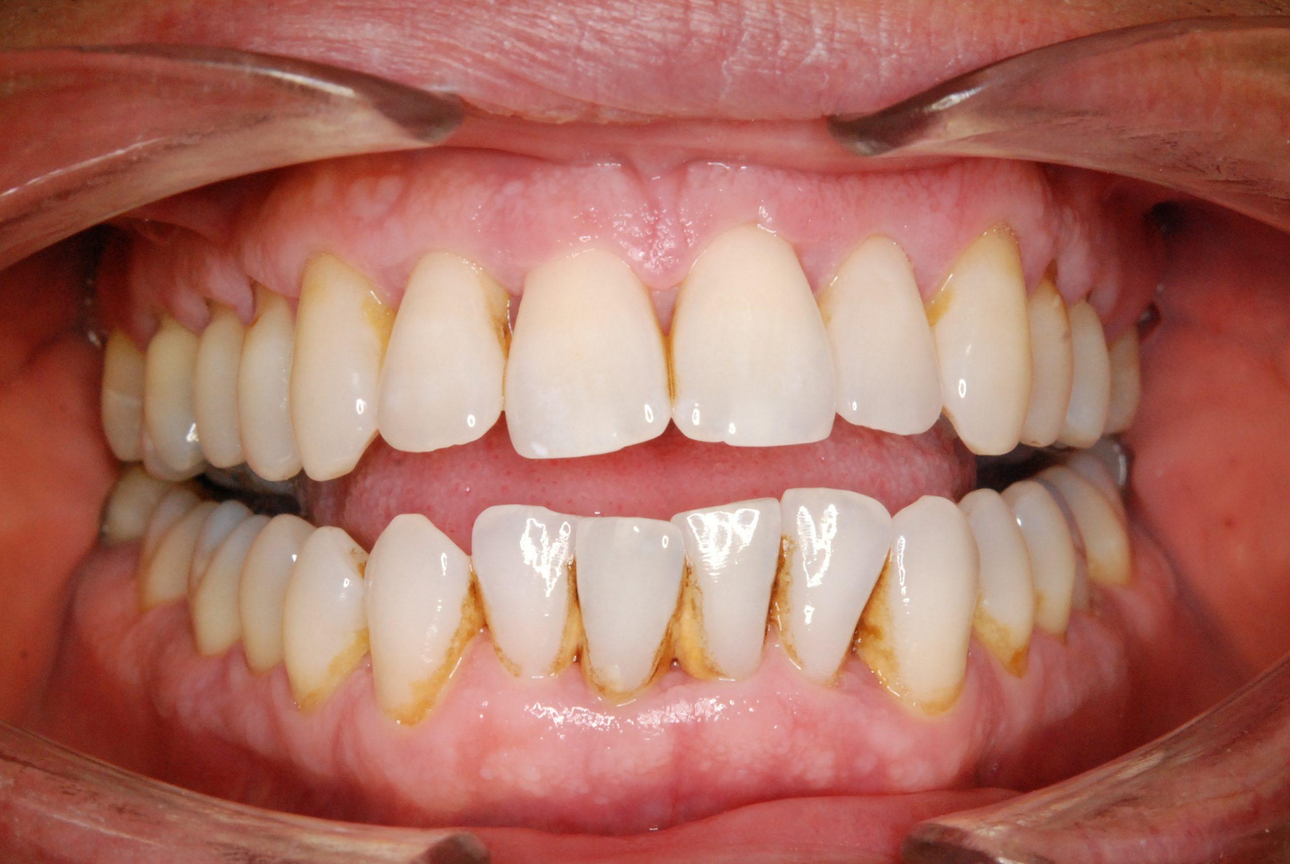1 Dentální hygiena Before 3 (2)