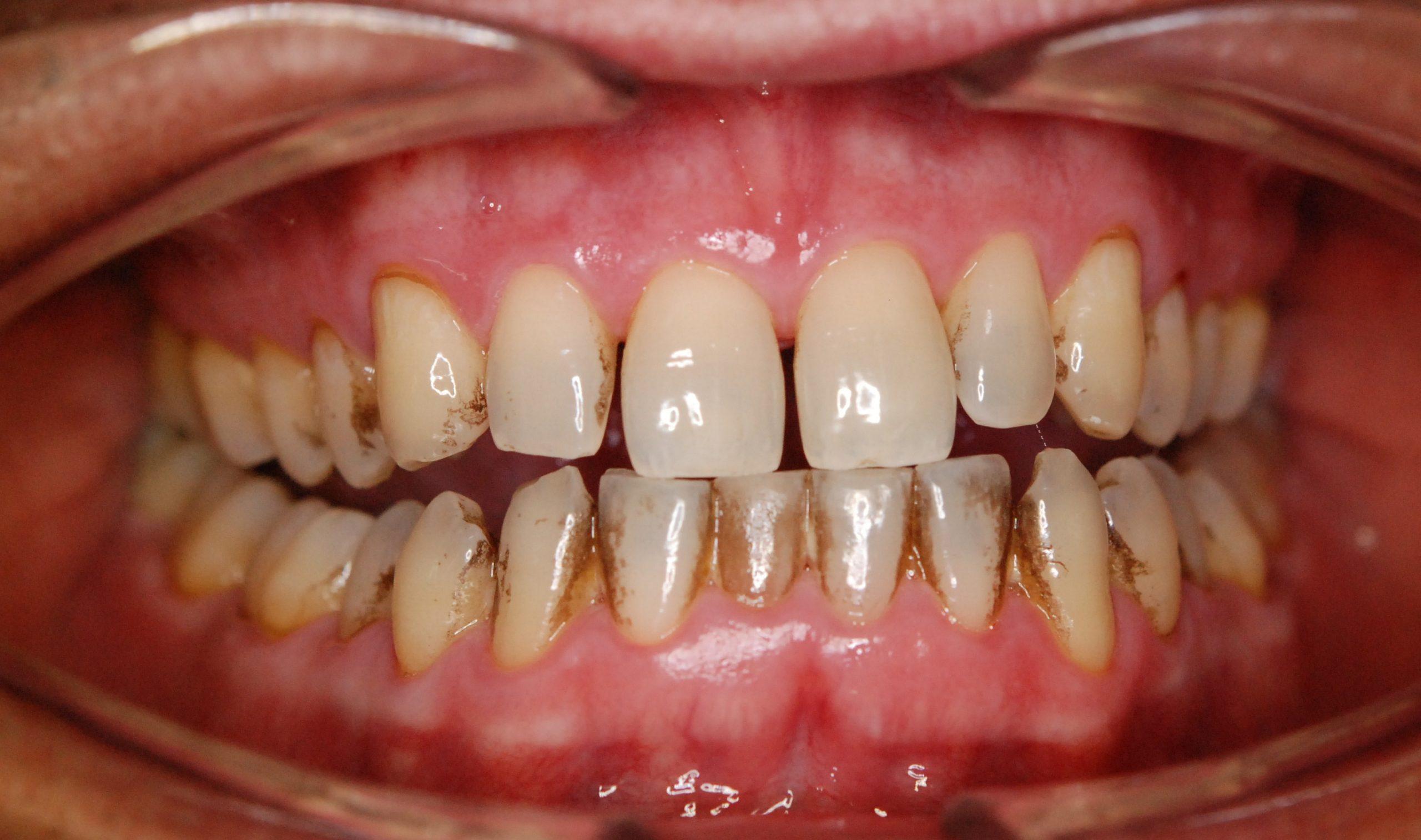 Čištění zubů #1